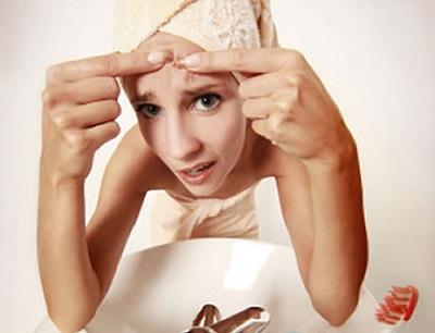 ¡SOS tengo granos!  8 consejos para eliminar granos de golpe