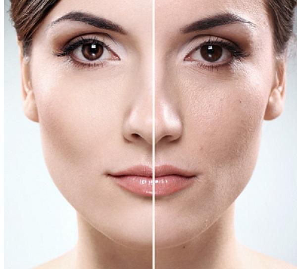 Tratamientos de medicina estética – Radiofrecuencia facial, Ácido Hialurónico, Mesoterapia Facial